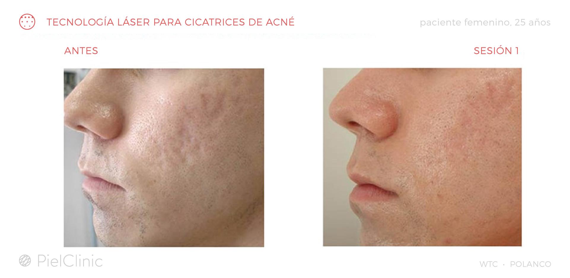 Cicatrices: antes y después